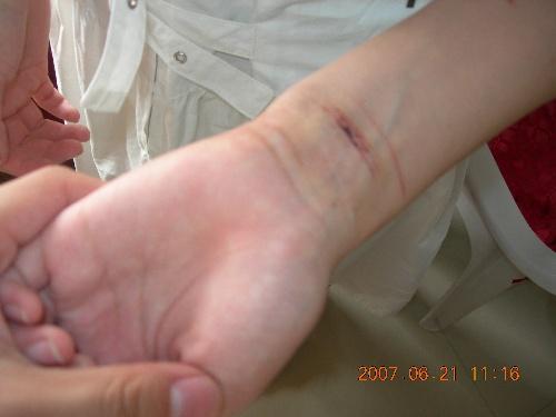 手割腕流血头像